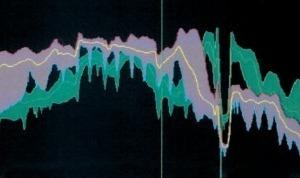"""<span class=""""bildunterschrift_hervorgehoben"""">b)</span>Very coarse mix – lilac, conventional, fine mix – green<br />"""